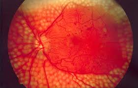 Fundus_photo_showing_scatter_laser_surgery_for_diabetic_retinopathy_EDA09